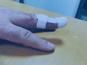 Orthèse pour maillet doigt